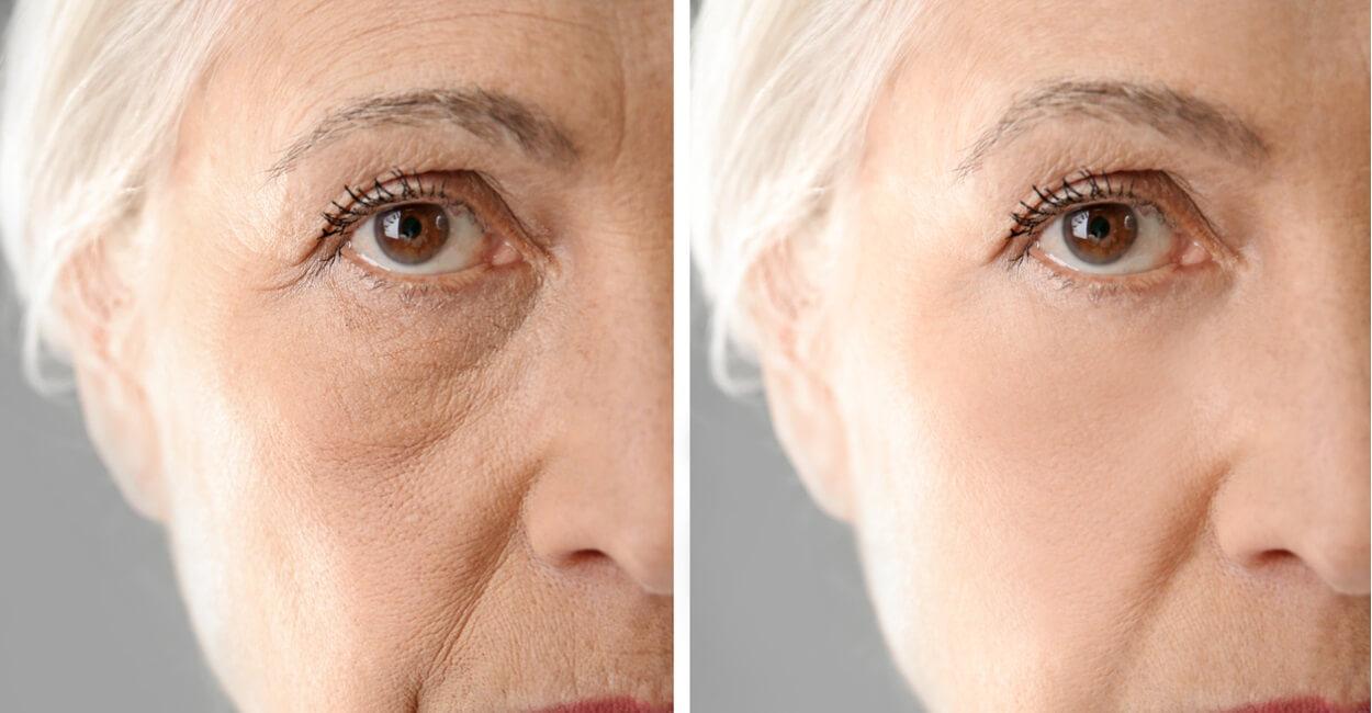 Plasma Anti Aging Behandlung Ebern Coburg Bamberg